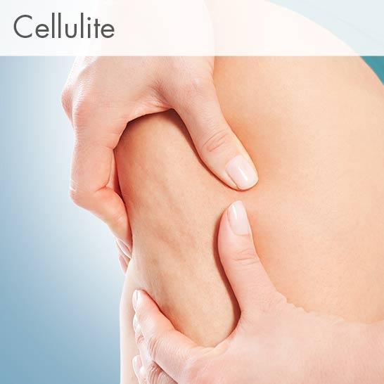 Revoten bei Cellulite