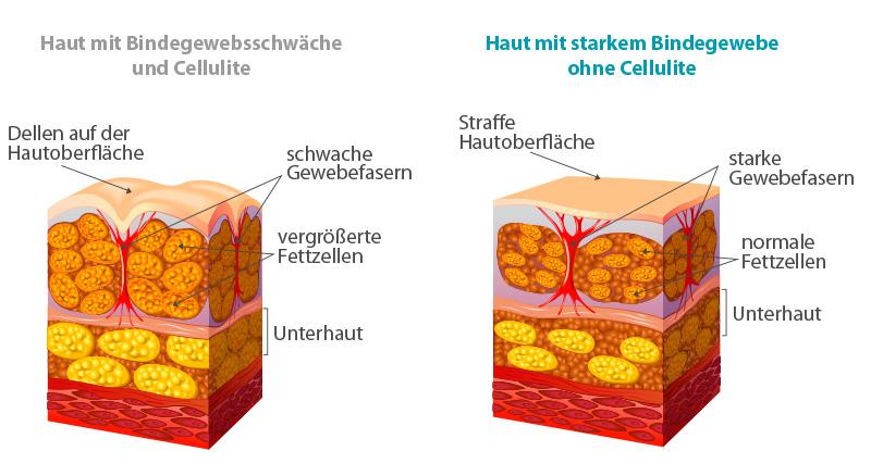 Haut Queerschnitt